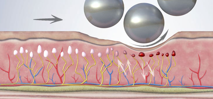 Azione antalgica trattamento corpo