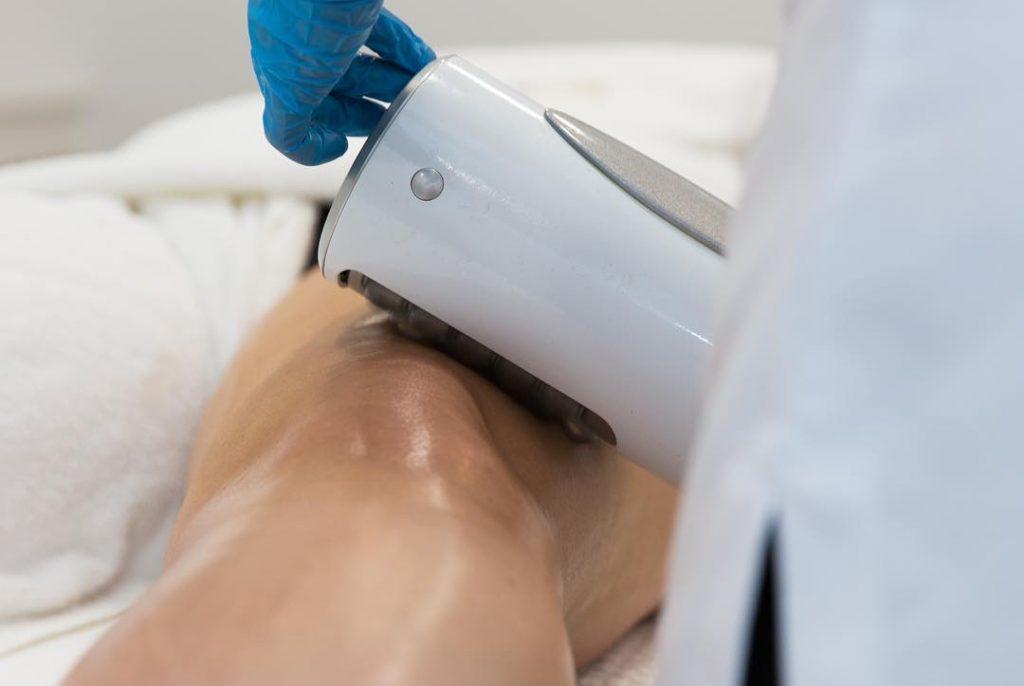 Endosphères elimina la cellulite sulle ginocchia