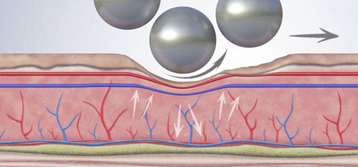 Azione vascolare trattamento corpo